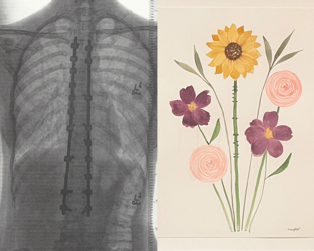 spinal fusion art by Mary Broome of Evelyn Rose Studio